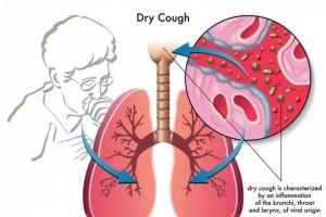 易引起干咳的十种药物太简单被忽视