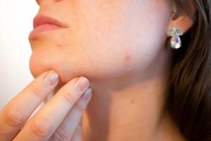 单纯疱疹病毒怎么预防单纯疱疹病毒如何治疗