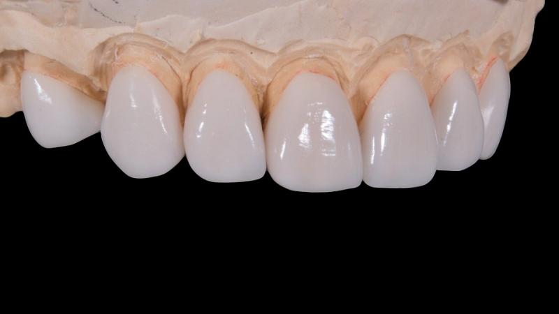 烤瓷牙套怎么样多效合一美牙功效强大